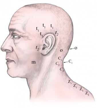 Lateral injection sites.