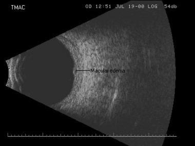 Transverse macula scan of an eye with macular edem