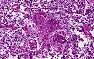 This glioblastoma is composed of extensive fibrill