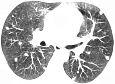 Chest CT image of pulmonary coccidioidomycosis. (C