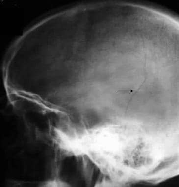 Skull radiograph in a man shows a linear temporopa