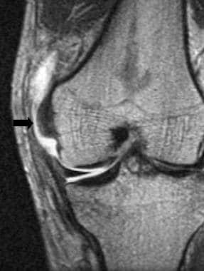 Grade III medial collateral ligament tear on a cor