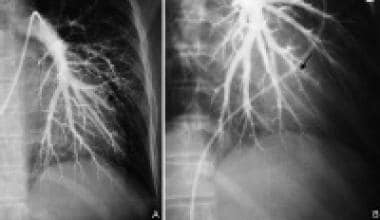 (A) Left pulmonary angiogram shows faint subsegmen