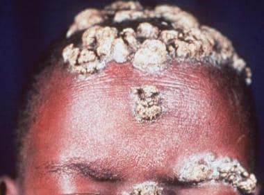 Crusted hyperkeratotic plaques on eyebrow, forehea