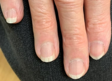 Brittle nail syndrome: Moderate-to-significant lon