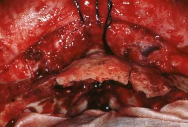 Neurosurgical view after bifrontal craniotomy. The