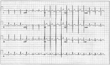 Electrocardiogram of an 18-month-old boy with doub