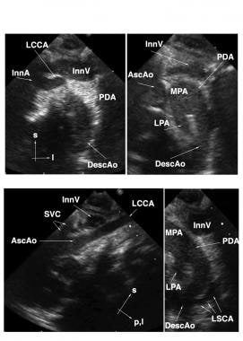 Suprasternal echocardiographic identification of i