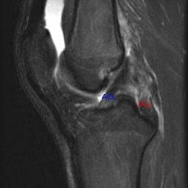 This MRI of the knee shows a torn posterior crucia