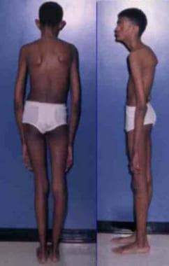 Adult with Marfan syndrome. Note tall and thin bui