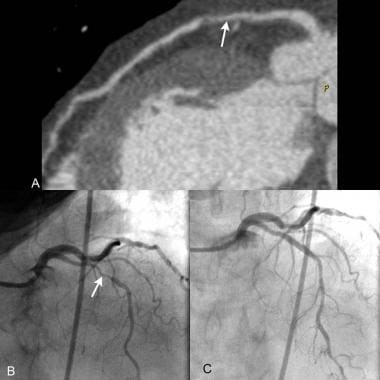 CT angiography and catheterization: Multiplanar re