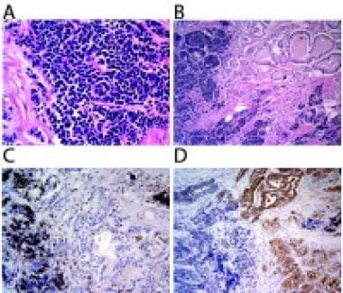 Histologic and immunohistochemical features of pro