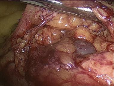 Laparoscopic splenectomy. Accessory spleen found i