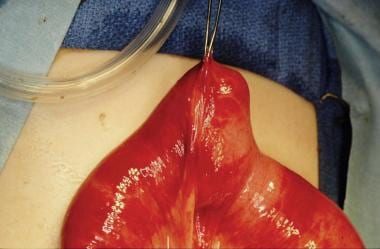 Intraoperative photograph of Meckel diverticulum.