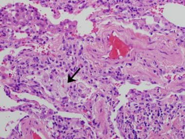A case of hypersensitivity pneumonitis in a 48-yea