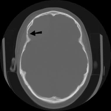 Image depicts a fracture of the right frontal bone