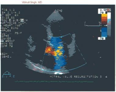 Severe mitral regurgitation as depicted with color