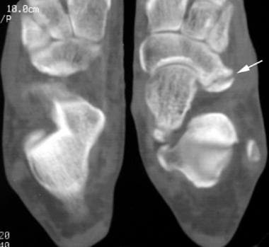 CT scan in a patient with unilateral calcaneonavic