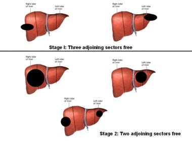 Sectors of the liver with tumor location based on