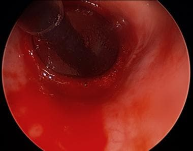 Balloon Dilation of Cartilagenous Stenosis