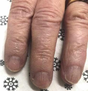 Brittle nail syndrome: A 75-year-old woman with a