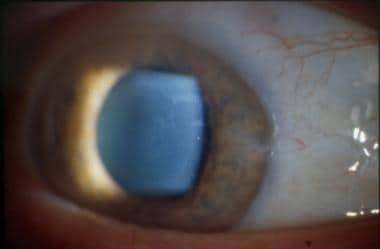 Corneal maps. Best seen with broad illumination be