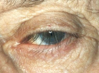 Floppy eyelid syndrome. Eyelash ptosis in patient