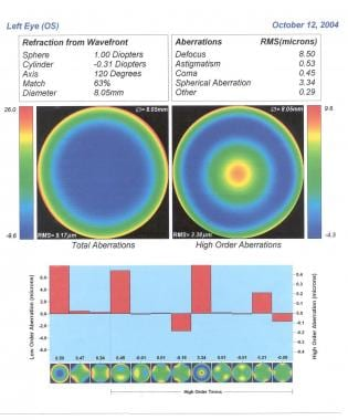 Spherical aberration post-LASIK. The original refr