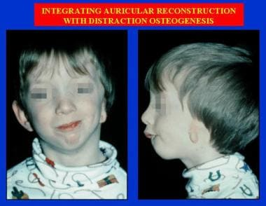 Integrating auricular reconstruction with distract