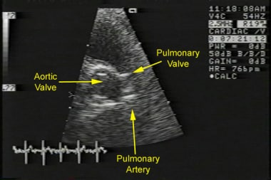 Echocardiogram of a patient with severe pulmonic s
