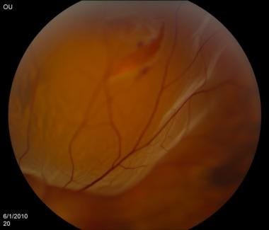 Retinal detachment. Courtesy of Kresge Eye Institu