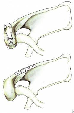Scapular Fracture Treatment & Management: Prehospital Care