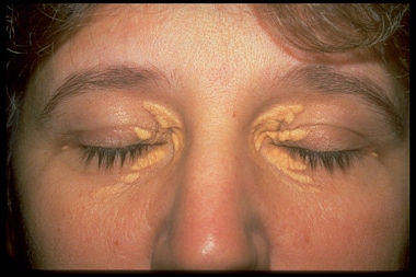 Xanthelesma of four eyelids in patient with hyperl