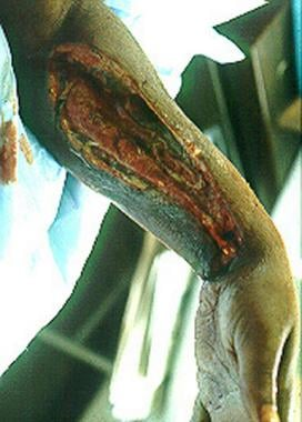 Left upper extremity shows necrotizing fascitis in