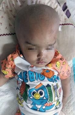 A 1-year-old boy with macrocephaly. The image illu