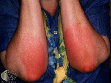 Delayed pressure urticaria. Courtesy of DermNet Ne