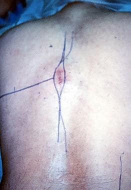 Spinal tumors. Photograph of patient's back at tim