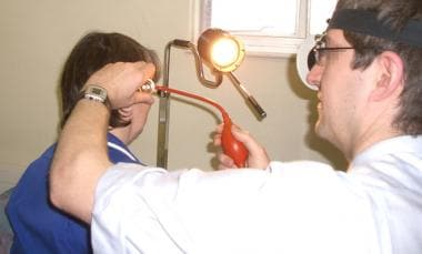 Photo demonstrating the use of the Siegle speculum