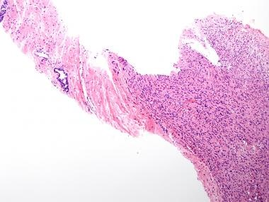 Low-power magnification of prostate core biopsy sh