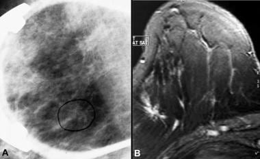 A, Image in a patient with a focal irregular nodul