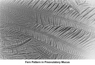 Infertility. Fern pattern of preovulatory mucus. I