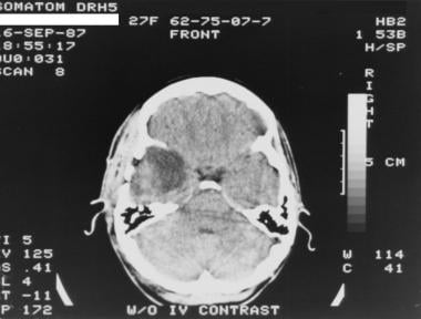 Brain Imaging in Astrocytoma: Overview, Computed Tomography