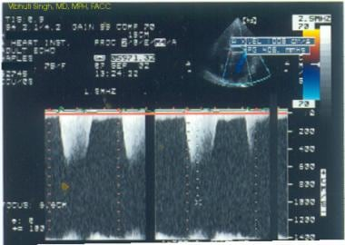 Mitral regurgitation as seen with pulsed Doppler e