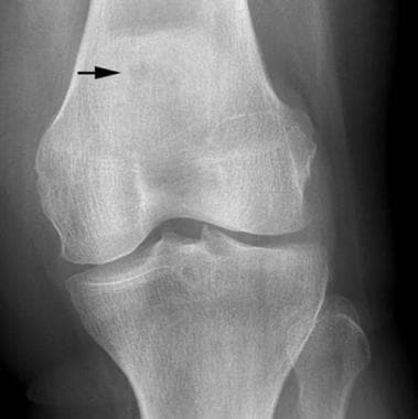 Anteroposterior radiograph of the knee demonstrate