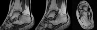 MRI in a patient with calcaneonavicular coalition.