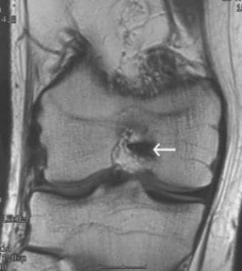 Chronic tear of the ACL with empty notch sign. T1-