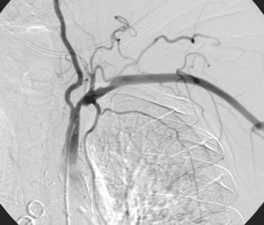 Patient presented with cardiac ischemia after a le