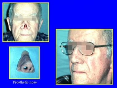 An artificial nose is attached with medical-grade
