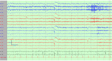 Electroencephalogram demonstrating repetitive left
