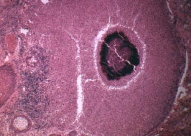 Photomicrograph of a characteristic sulfur granule